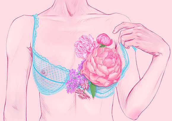 Breast Cancer Illustration